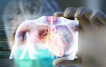 Prima operaţie intervenţională la inimă cu hologramă